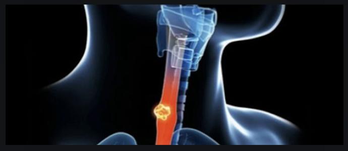 Плоскоклеточный неороговевающий рак пищевода