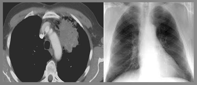 Пневмониеподобная форма, узловая форма
