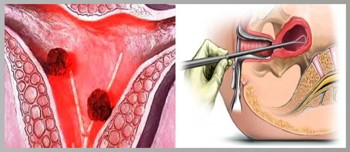 Поражение эндометрия матки