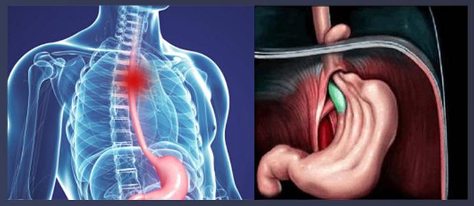 Поверхностный рак пищеводной трубки