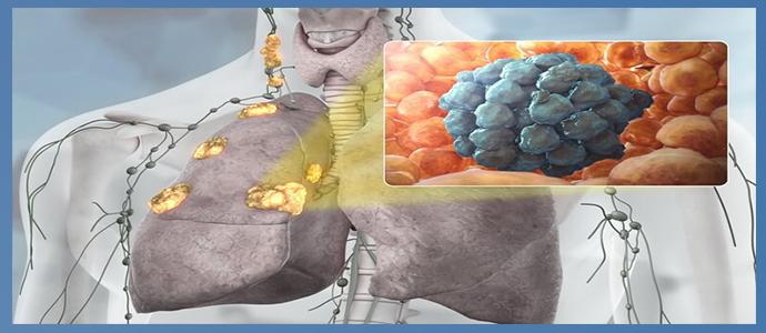 Рак легких IV стадии