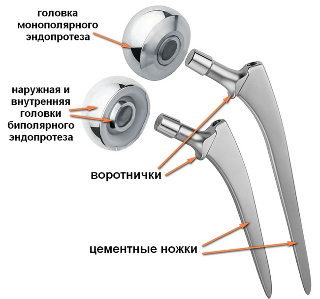 Разновидности липосарком