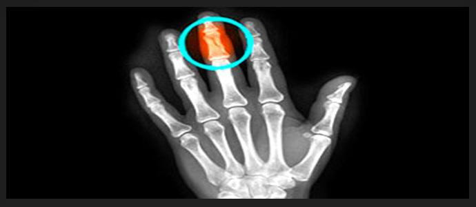 Саркома пальца