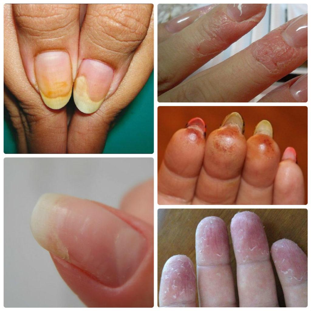 Аллергия на гель-лак