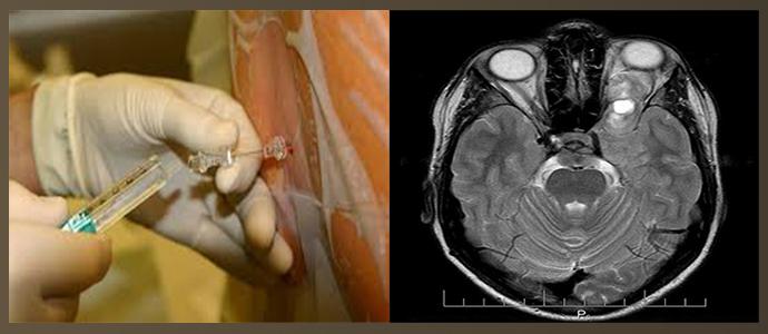 Спинномозговая пункция, магнитно-резонансная томография