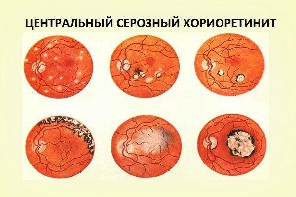 Центральный серозный хориоретинит