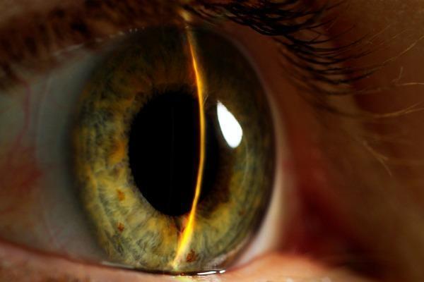 Заболевание закрытоугольная глаукома