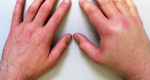 отек руки у взрослого при аллергии