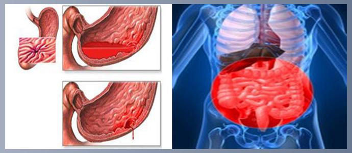 Желудочно-кишечные кровотечения