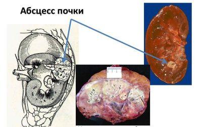 Почему возникает острый пиелонефрит, как он проявляется и лечится?