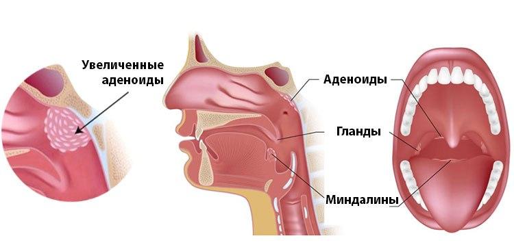 Заразен ли аденоидит