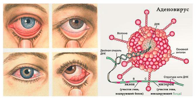 Вирусный конъюнктивит лечение
