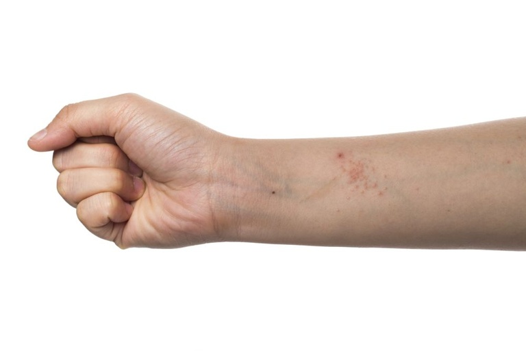 Мази от аллергии