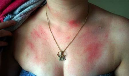 Аллергия на золото