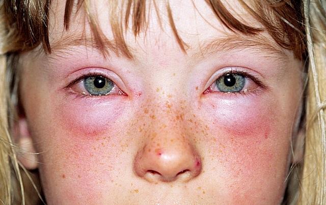 Аллергия на Мирамистин