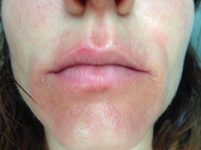 Аллергия на зубную пасту