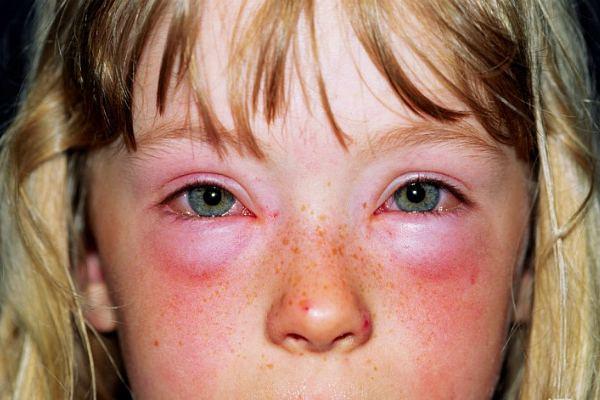 Слезотечение, покраснение, зуд глаз у детей при аллергии