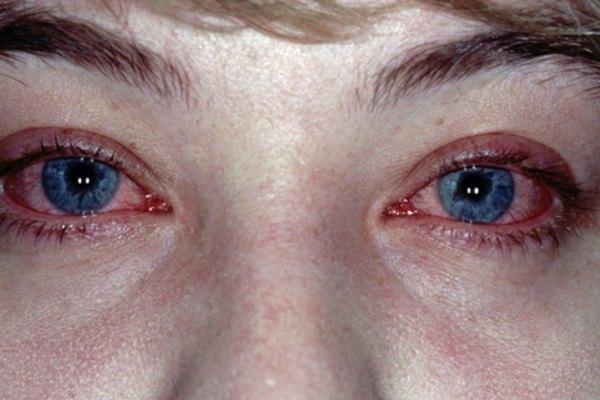 Аллергический блефароконъюнктивит