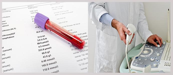 Анализ на онкомаркеры, УЗИ