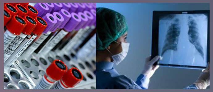 Анализы крови, рентгенография