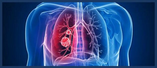 Анапластический рак легких