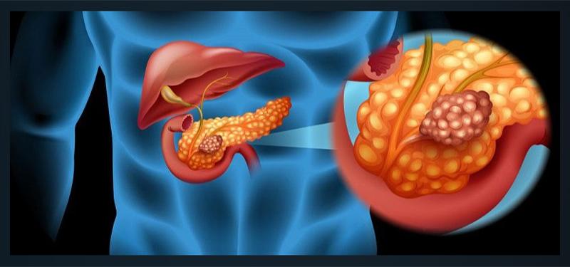 Анапластический рак поджелудочной железы