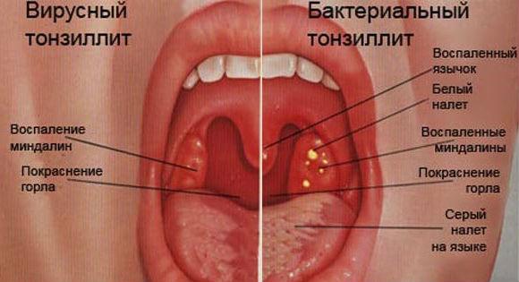 Вирусный фарингит