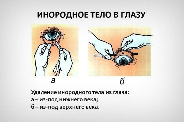 Процесс удаления инородного тела из глаза