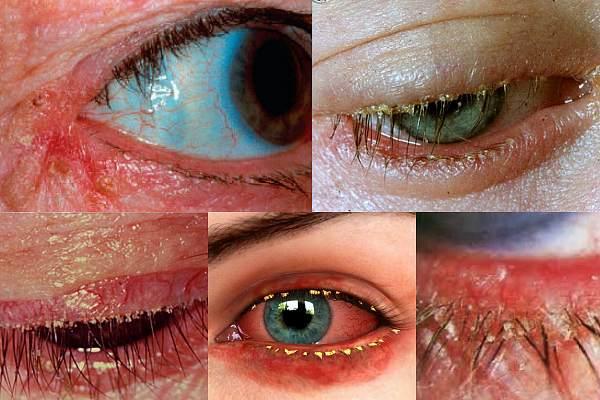 Классификация блефароконъюнктивита глаз
