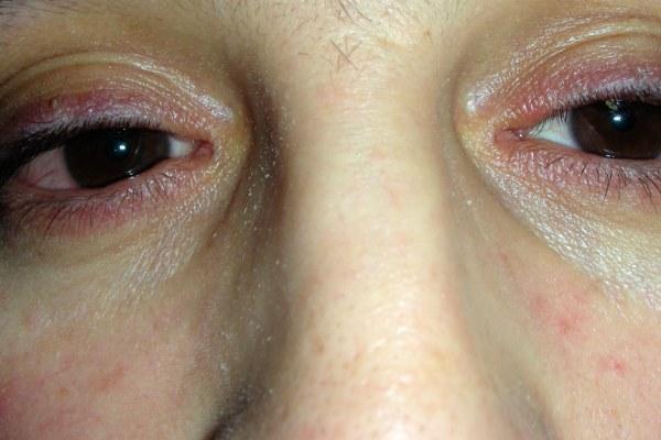 Отек и покраснение век у женщины при аллергическом блефарите