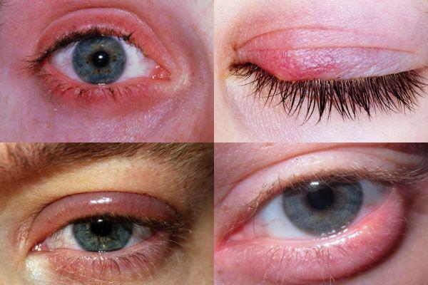 Как выглядит аллергический блефарит