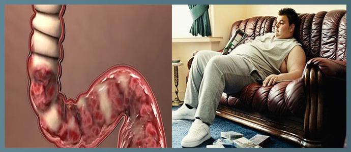 Болезни кишечника, малоподвижный образ жизни