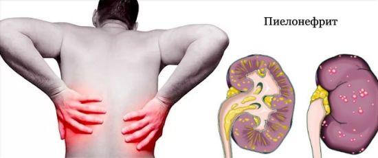 Какие симптомы пиелонефрита у мужчин, и как его лечить?