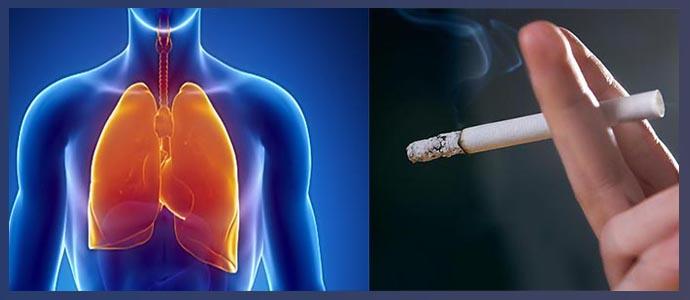 Бронхолегочные патологии, курение