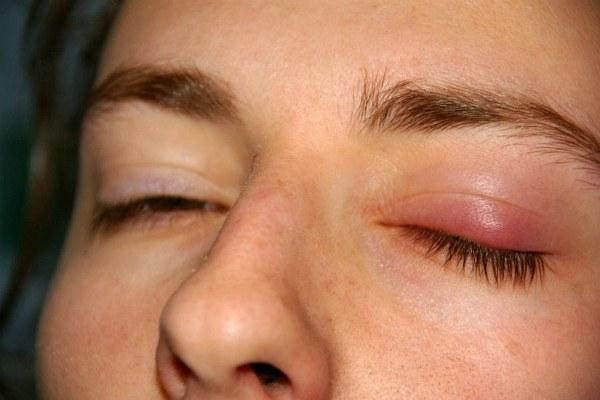 Зуд и боль при появлении ячменя на глазу