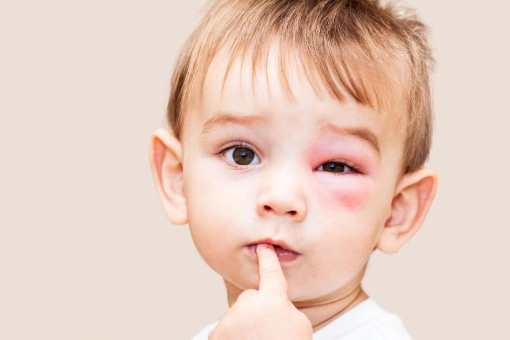 аллергия на лице у малыша