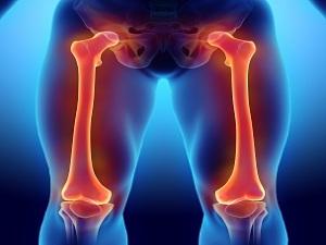 Что такое остеома бедра