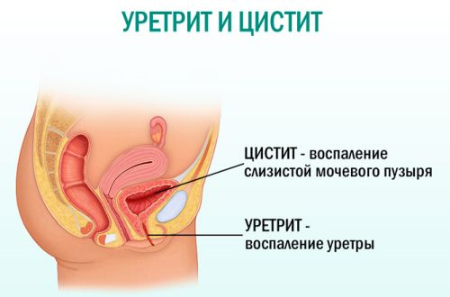 Что значит появление плоского эпителия в моче?