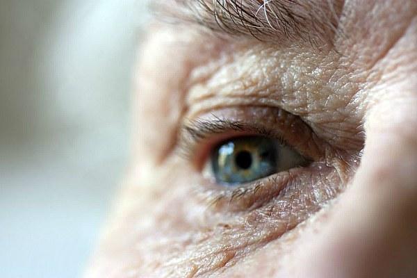 Вторичная глаукома у пожилого человека