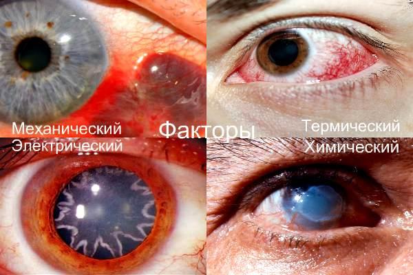 Факторы травм глаз