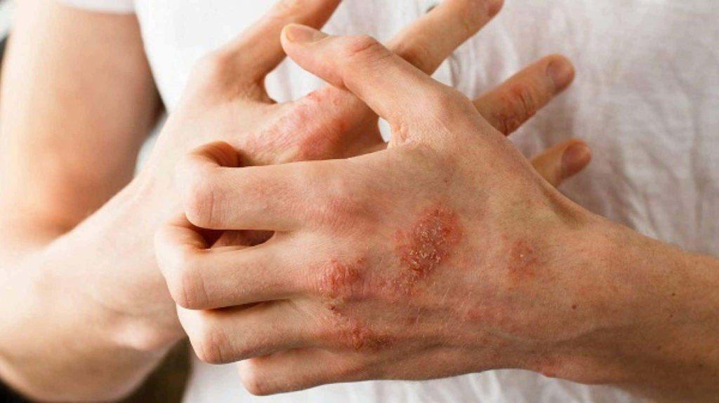 Аллергия на изделия из латекса