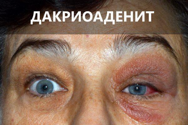 Дакриоаденит