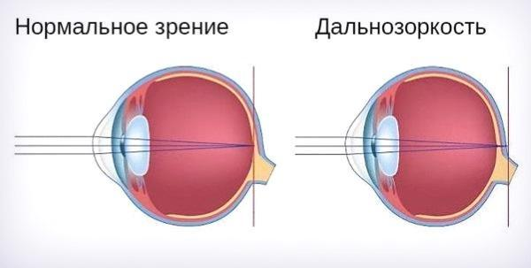Фокусировка за сетчаткой глаза
