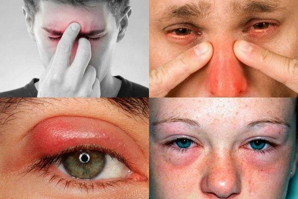 Причины боли глаз при простуде