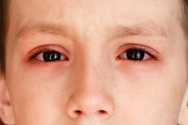 Покрасневшие глаза у ребенка