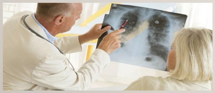 Лечение бронхоальвеолярного рака в разных странах