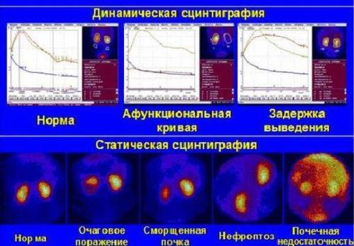 Что такое статическая и динамическая нефросцинтиграфия почек?