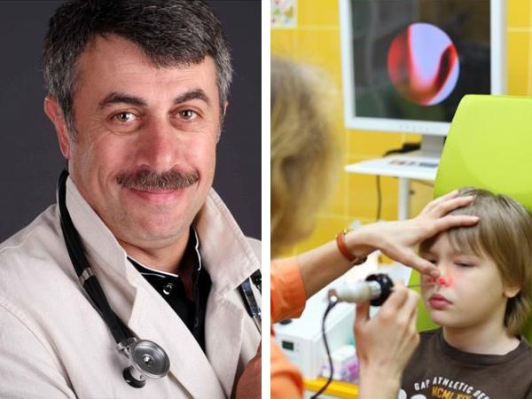 Симптомы и лечение аденоидов у детей по Комаровскому