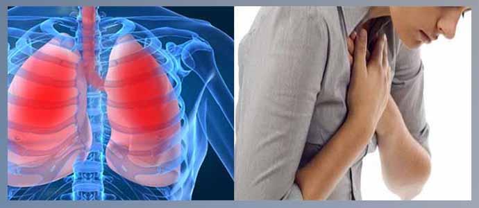 Дыхательная недостаточность, бронхолегочные кровотечения