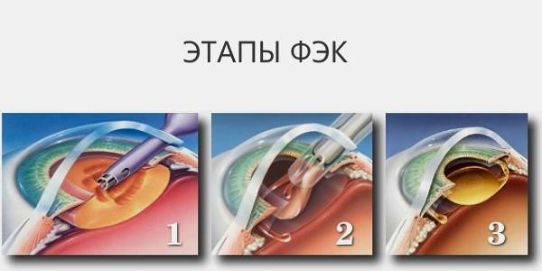 Этапы проведения операции